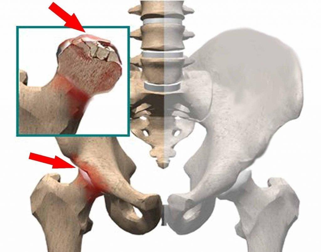 4863 Что такое некроз тазобедренного сустава?